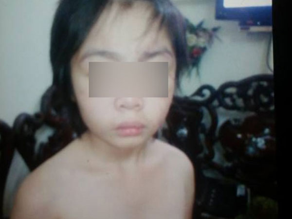 Hà Nội: Bé trai 10 tuổi tháo chạy khỏi bố và mẹ kế, tìm về ông bà nội vì bị bạo hành?