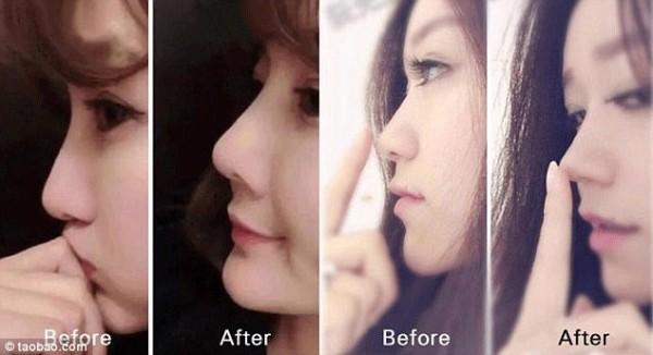 Độn mũi không cần dao kéo, xu hướng làm đẹp chị em châu Á đang phát cuồng có gì đặc biệt?