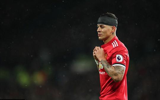 Rojo khoe chấn thương ghê rợn sau trận gặp Man City