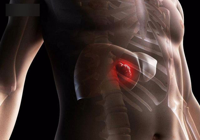 34 tuổi mắc ung thư gan giai đoạn cuối, nguyên nhân gây bệnh ai cũng nên đề phòng