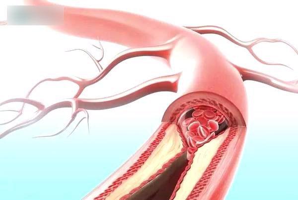 6 hành vi khiến mạch máu tắc nhanh hơn, nhiều người vô tư làm hàng ngày mà không biết
