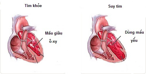 Dấu hiệu báo động nguy cơ suy tim bạn cần biết