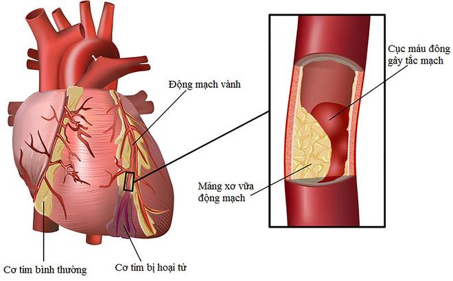 Mỡ máu cao gây ra 3 loại bệnh nguy hiểm, hiểm họa bắt đầu từ 4 thói quen nhiều người mắc