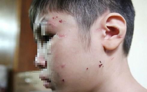 Đề nghị khởi tố vụ bé trai 10 tuổi bị mẹ kế bạo hành ở Hà Nội