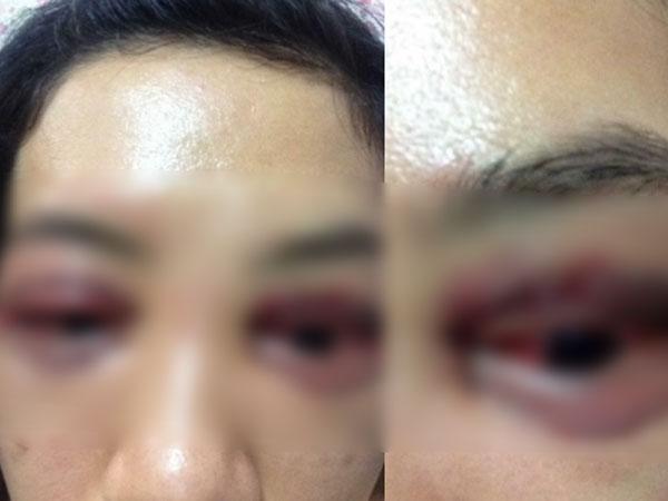 Vụ cô gái đi cắt mí mắt gây xôn xao MXH: Khi cô gái đến làm việc, chủ spa hỏi sao lại bêu xấu hình ảnh spa