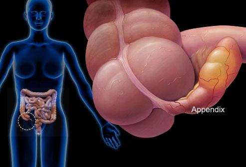 Lý giải những nguyên nhân gây đau bụng dưới ở phụ nữ