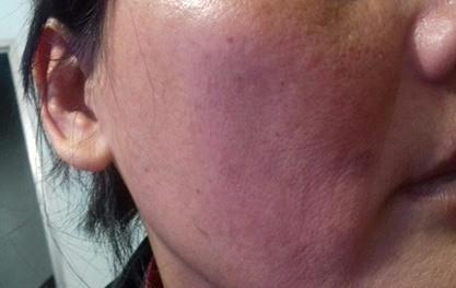 Sơn La: Bất chấp con trai 10 tuổi đứng trước mặt, chồng vẫn đánh đập và cắt trọc đầu vợ