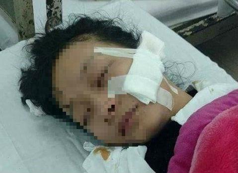 Khởi tố vụ nữ sinh lớp 11 bị rạch mặt ở chợ
