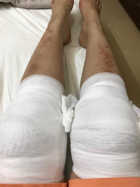 Gặp tai nạn nghiêm trọng khi biểu diễn, danh ca Thanh Tuyền tiều tụy trên giường bệnh