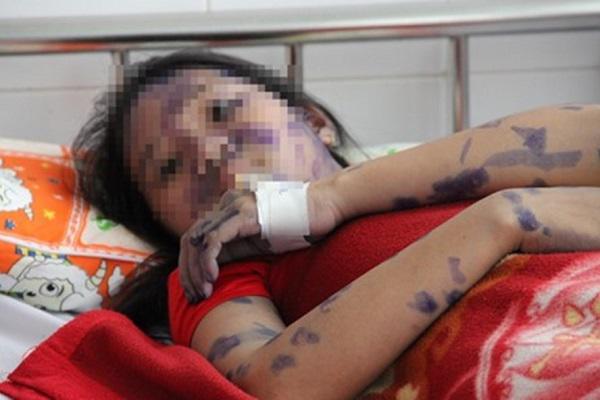 Cô gái trẻ nguy kịch vì biến chứng không ngờ của bệnh thủy đậu