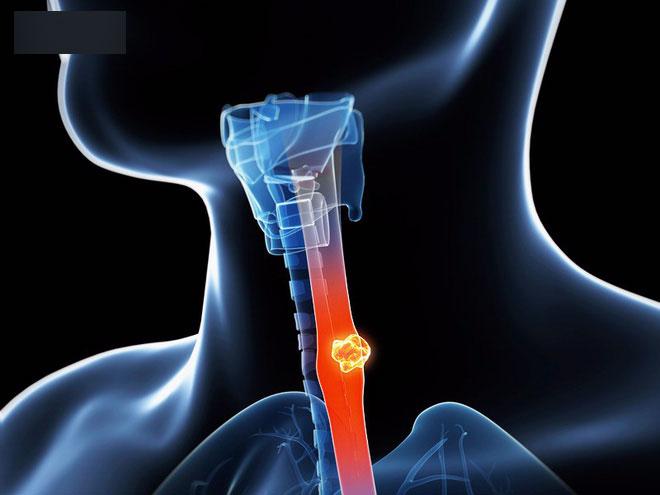 Ung thư thực quản gây đau đớn và khó điều trị, muốn phòng bệnh phải làm tốt 5 việc