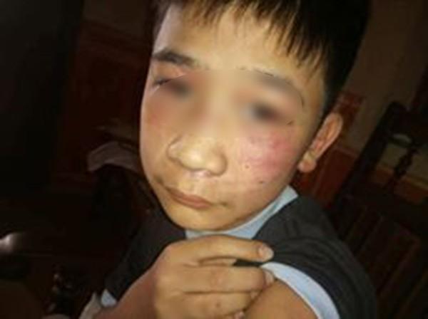 Vụ bé trai 14 tuổi bị bạo hành: Bác ruột từng chứng kiến trận đòn của bố dành cho con nhưng bất lực