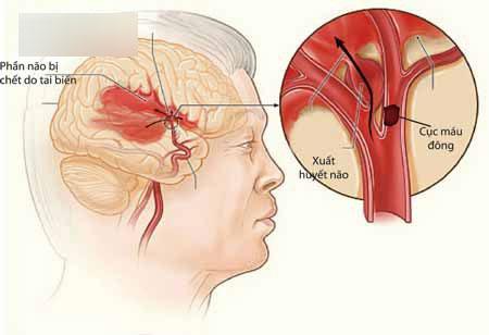 Chuyên gia tim mạch: Nhiều trường hợp bị nguy hiểm vì uống An cung ngưu hoàn phòng đột quỵ