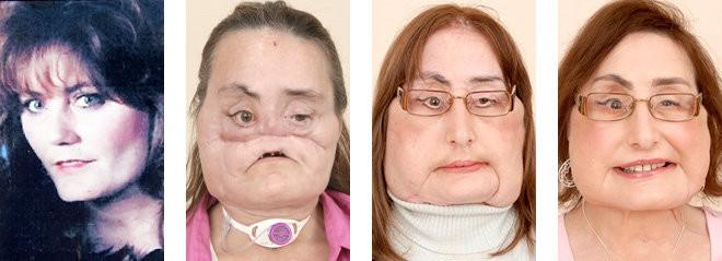 Gã chồng ghen tuông san phẳng khuôn mặt vợ, 4 năm sau điều không tưởng đã xảy ra