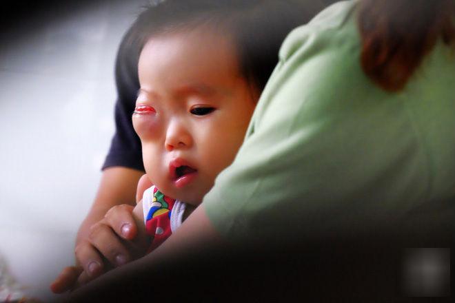 13 tháng trời, đôi vợ chồng nghèo Cà Mau gõ cửa 12 bệnh viện để tìm ra bệnh cho con