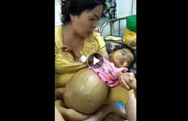 Cảnh báo: Bé gái ung thư tụy đã mất 3 tháng vẫn bị kẻ xấu nhẫn tâm đưa hình ảnh lên mạng trục lợi