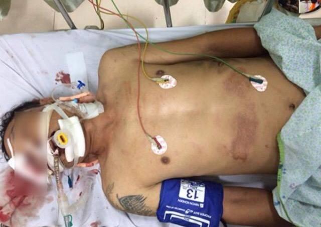 Thông tin mới về sức khoẻ nạn nhân bị xe bán tải kéo lê tại ngã 6 Ô Chợ Dừa