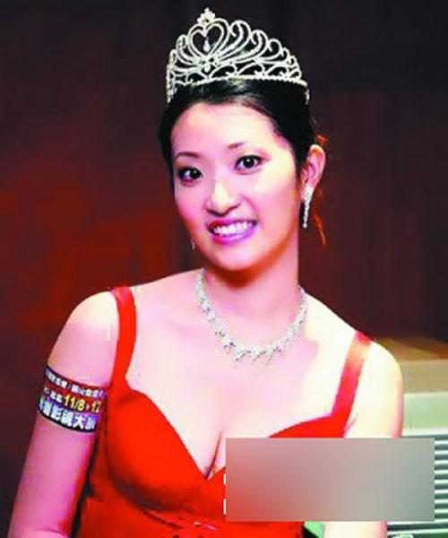 Á hậu Trung Quốc béo ục ịch, sống cảnh bết bát sau scandal bán dâm
