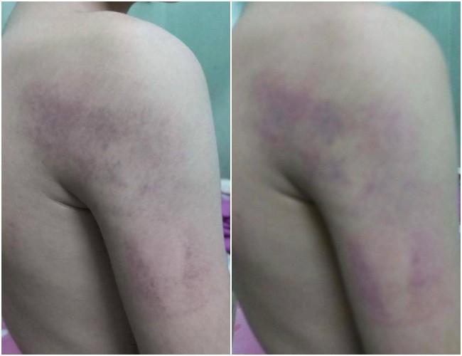 Hà Nội: Phụ huynh tố giáo viên chủ nhiệm đánh con trai lớp 1 bầm tím vì trình bày bài không trôi chảy