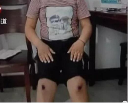 Thầy giáo bắt học sinh đi bằng đầu gối đến tóe máu