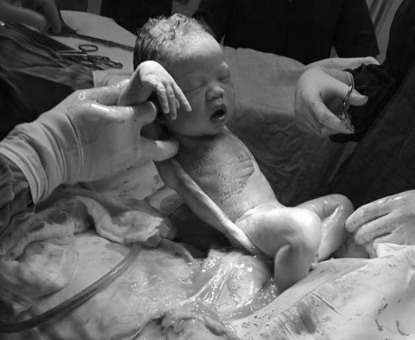 Bé Sài Gòn chào đời với dây rốn quấn chặt cổ: Các mẹ hốt hoảng, bác sĩ bảo chuyện thường