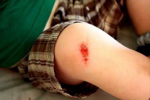 Chàng trai tử vong sau khi cắt móng chân, bác sĩ nói nếu làm sớm điều này thì đã sống