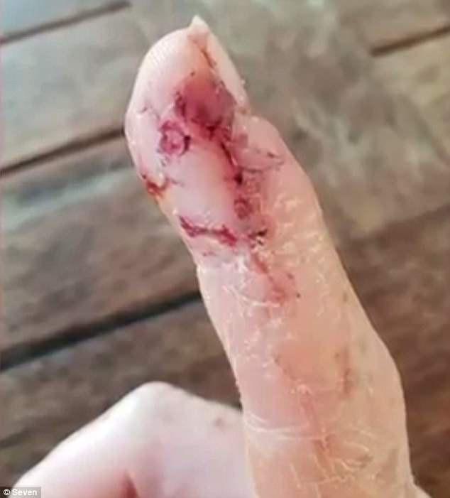 Úc: Thả thức ăn cho cá mập, cô gái bị ngoạm luôn ngón tay kéo xuống biển
