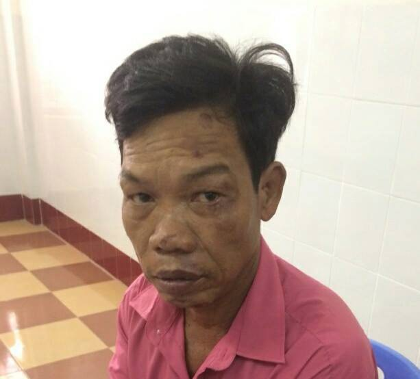 Bình Định: Bị mắng trong lúc nhậu nhẹt, con trai đánh chết cha già 84 tuổi, đe dọa mọi người không được đưa đi cấp cứu
