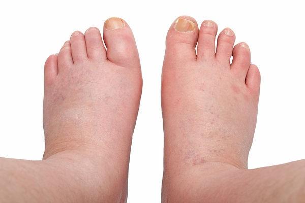 12 dấu hiệu cảnh báo gan bị tổn thương: Rất dễ nhận ra và dễ nhớ