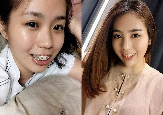 10 màn lột xác thành soái ca. mỹ nữ khó tin sau khi làm răng và tóc