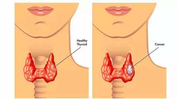 5 loại bệnh vặt không lo chữa, để quá lâu sẽ có nguy cơ tiến triển thành ung thư