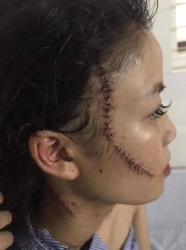 Chị gái thiếu nữ xinh đẹp bị rạch mặt: Em tôi kêu có thai mà họ vẫn không tha
