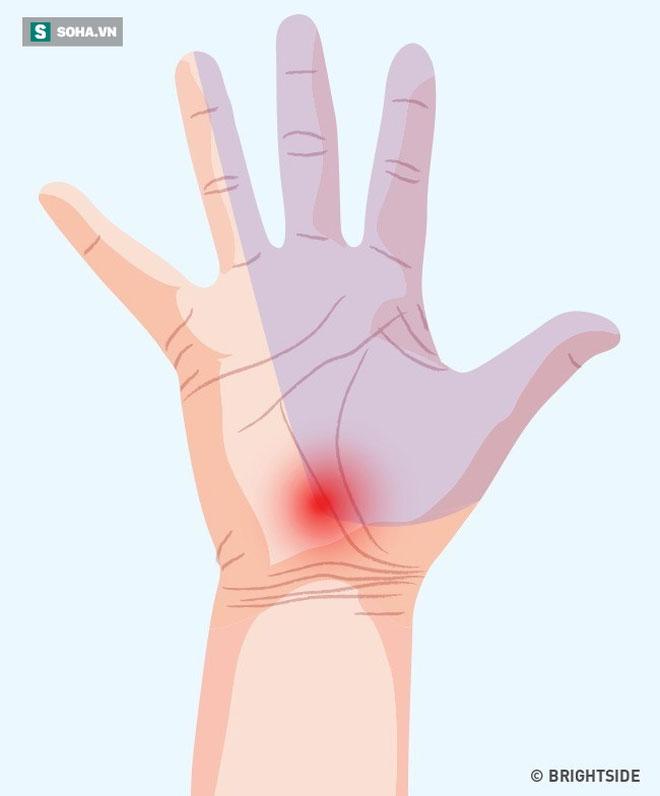 3 dấu hiệu bất thường ở tay chân: 80% khả năng bạn bị tắc mạch máu, nên xử lý ngay