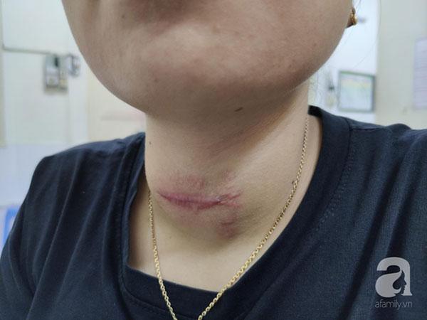 Cô gái bị loét vùng cổ do tin vào thầy lang chữa bệnh basedow và lời khuyến cáo của bác sĩ - 1