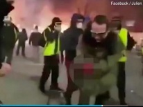 Người biểu tình Pháp bị nổ nát bàn tay vì cầm lựu đạn cay