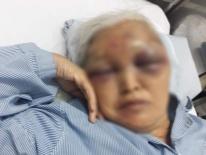 Hà Nội: Đến thăm con vào giữa đêm không được đồng ý, rể cũ ra tay đánh mẹ vợ nhập viện