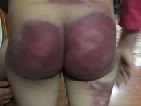 Người bố bị phạt 2,5 triệu đồng vì đánh bầm dập con gái 8 tuổi