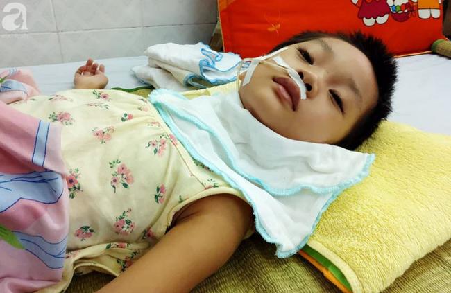 Bé gái 5 tuổi bị viêm màng não tự miễn sau cơn co giật, hơn 1 tháng không thể ngủ và liên tục la hét - 1