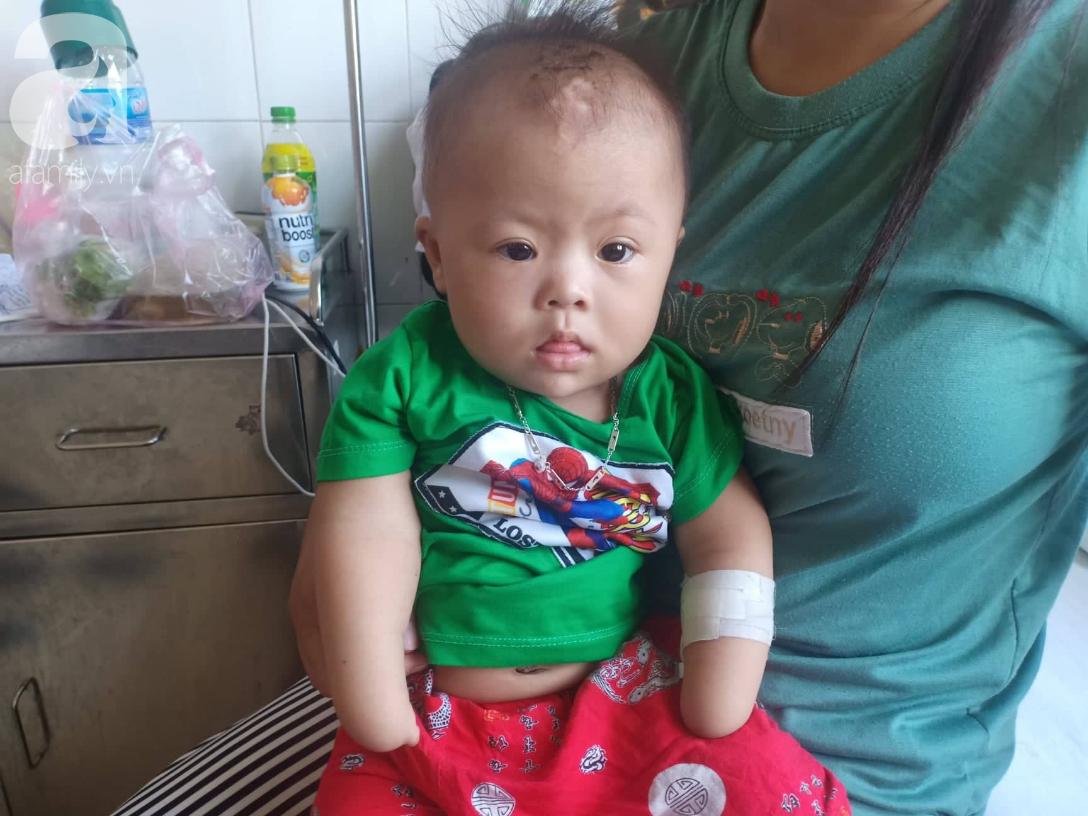Tâm sự đau đớn của người mẹ khi sinh con trai không có 2 tay: 'Tôi đã sốc khi lần đầu nhìn thấy hình hài con mình' - 2