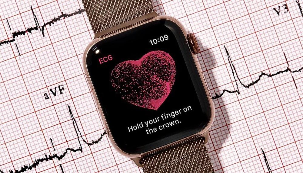 Tính năng điện tâm đồ trên Apple Watch sắp dùng được ở Việt Nam - 1
