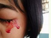 'Mồ hôi máu' - căn bệnh kỳ bí đối với y khoa thế giới