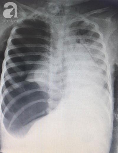 Bé gái 3 tuổi ngưng tim, ngưng thở nguy kịch nhưng cha mẹ không biết con đã nuốt hạt mãng cầu - 1