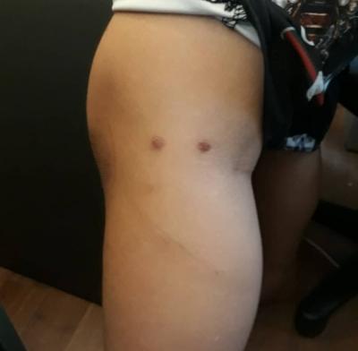 Bị vợ cũ tố cùng vợ mới bạo hành con trai 12 tuổi dã man, đốt cả túi nylon để nhỏ vào mông bé, người bố nói gì? - 1