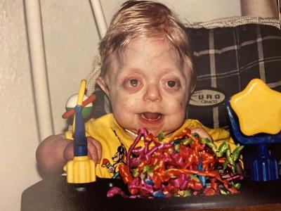 Bé trai sinh ra với ngoại hình kỳ lạ, bác sĩ khẳng định khó sống sót nhưng cuộc đời và diện mạo 17 năm sau khiến ai cũng kinh ngạc - 1